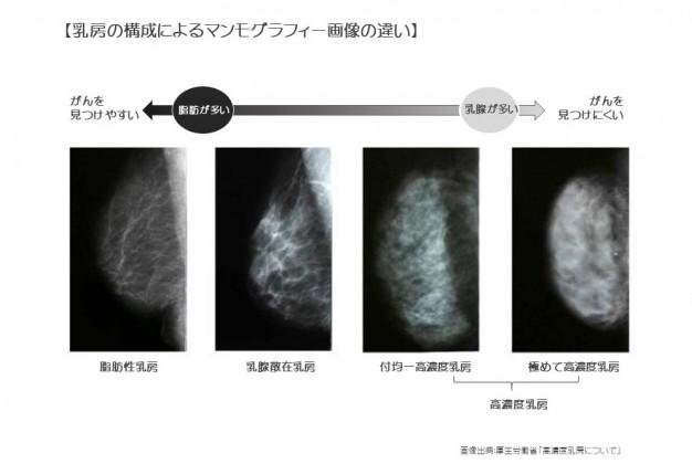 乳房の構成によるマンモグラフィー画像の違い