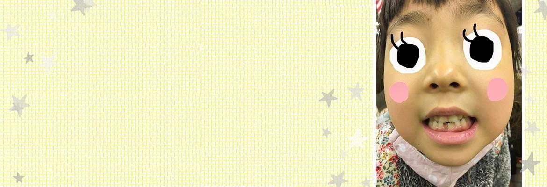 森三中・ムーさんの子育て日記 Vol.99 乳歯
